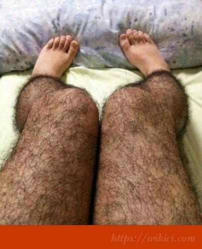 Vì sao đàn bà tay chân có lông rậm rạp như đàn ông?-8